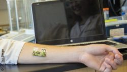Image: Sensor on an arm, laptop in background; Copyright: UC San Diego