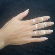 Photo: Silver Ring Splints