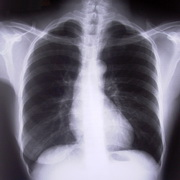 Photo: X-ray of the upper part of a body, with the lungs