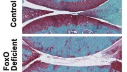 Image: images of knee joints from control and FoxO deficient mice; Copyright: Lotz Lab, The Scripps Research Institute