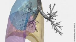 Image: Illustration of lung structure from CT scan data; Copyright: University of Southampton