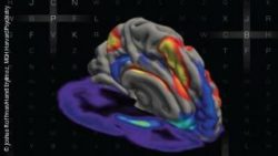 Photo:Simultaneous MRI and PET Images Showing Interaction between Brain Networks