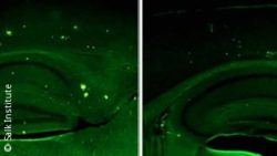 Image: Two pictures of a mouse model of Alzheimer's disease; Copyright: Salk Institute