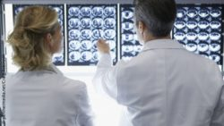 Image: look over the shoulder of two doctors discussing brain scans; Copyright: panthermedia.net/Craig Robinson