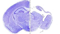 Image: Composition of two mouse brain sections: left the brain of a healthy, juvenile mouse, right the equivalent without Vps15. Scientists linked this gene to defects in brain develop; Copyright: IMP