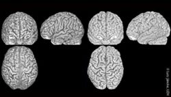 Image: three brain scans of two different brains; Copyright: Lutz Jäncke, UZH