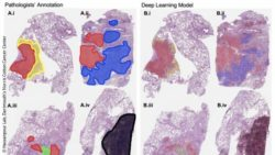 Image: Visualization on sample whole-slide images of the lung cancer histologic patterns; Copyright: Hassanpour Lab, Dartmouth's Norris Cotton Cancer Center