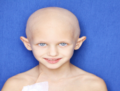 Photo: Child with no hair smiling