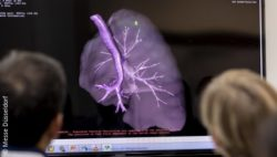 Image: imaging picture of the lungs at MEDICA trade fair; Copyright: Messe Düsseldorf