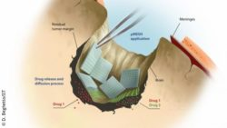 Image: Drawing showing how a brain tumor surgery site is outfitted with pieces of mesh; Copyright: D. Beghetto/IIT