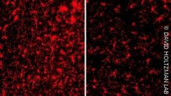 Image: Immune cells are more activated (red) in the brains of mice with the gene TREM2 (left) than in those without the gene (right); Copyright: DAVID HOLTZMAN LAB