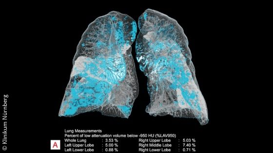 Image: CT image of two lungs with KI-supported automatic highlighting, quantification and measurement of anatomy and deviations; Copyright: Klinikum Nürnberg