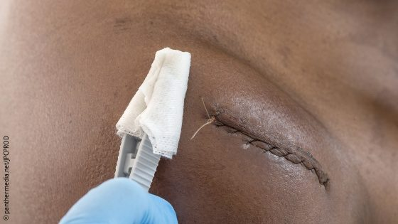 Image: The shoulder of a man with a surgical suture; Copyright: panthermedia.net/JPCPROD