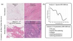 Image: examples of histopathology in the datasets used in the analyses; Copyright: Lisanne L. de Boer, Esther Kho et al.