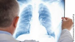 Image: Doctor looks at an X-ray image of a lung; Copyright: panthermedia.net/minervastock