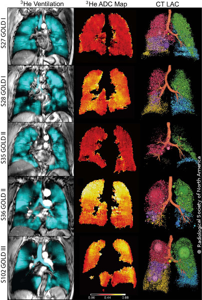 Photo: Images of lungs
