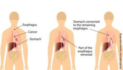 Image: Esophageal Cancer