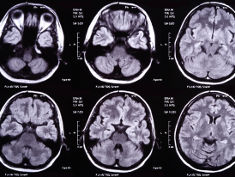 Photo: Brain scans