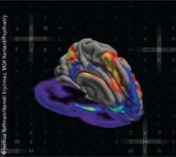 Photo: Simultaneous MRI and PET Images Showing Interaction between Brain Networks