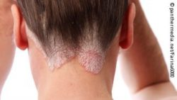 Photo: Psoriasis in the neck