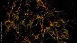Image: 3D single molecule super-resolution images of the amyloid plaques associated with Alzheimer's disease; Copyright: Purdue University image/Fenil Patel