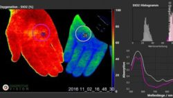 Image: Photograph of hands with hyperspectral imaging; Copyright: Diaspective Vision GmbH