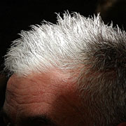 Photo: Grey hair on the top of a head