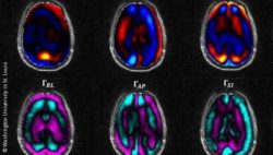 Image: Six different brain scans; Copyright: Washington University in St. Louis