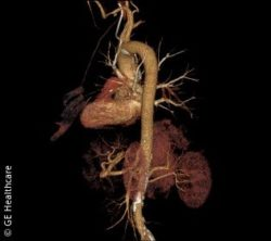 Image: FBP image of the aorta; Copyright: GE Healthcare