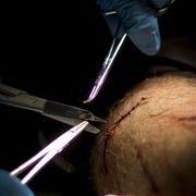 Photo: A wound at the arm getting sewed and stitched