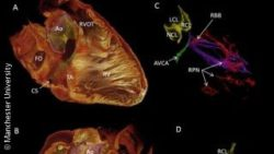 Image: heart 3D scan; Copyright: Manchester University