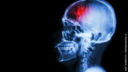 Image: scan of the head of a person with a stroke; Copyright: PantherMedia / stockdevil_666