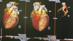 Image: Two images of the heart on a medical device monitor; Copyright: Messe Düsseldorf