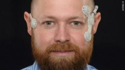 Image: face of a bearded man with the monitoring device on both sides of the face; Copyright: NNUH