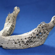 Photo: Implant of a jaw bone
