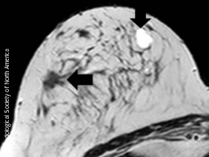 Photo: example of a screening-detected lesion