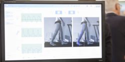 Photo: Software for gait analysis shown at a monitor