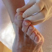 Photo: Hand in gloves investigates foot with nail fungus