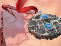 Graphic: Decoy device draws cancer cells from blood