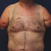 Foto: Torso of a man without arms