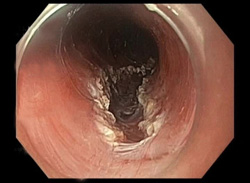 Peroral Endoscopic Myotomy