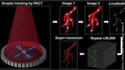 Super-resolved vascular imaging in vivo.  Credit: Pengfei Zhang, Lei Li, and Lihong V. Wang