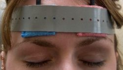 Image: Closed eyes of a patient. Electrodes are attached above the eyebrows; Copyright: savir-center.com
