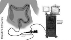 Image: Schematic display of an endoscope used for colonoscopy, connected to several devices; Copyright: Vanderbilt University