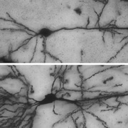 Photo: Nerve cells in the brain of mice