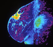 Photo: MRI of breast