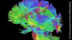 Image: Many wires in different colors, shaped like a brain; Copyright: Radiological Society of North America