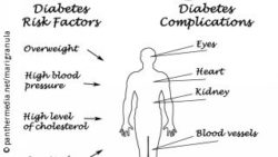 Image: Drawing of a human body, written down are risks for diabetics; Copyright: panthermedia.net/marigranula