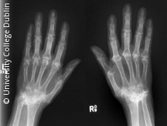 Photo: X-Ray image of hands of RA patient