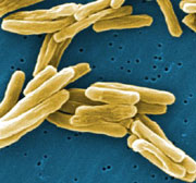 Photo: Mycobacterium tuberculosis